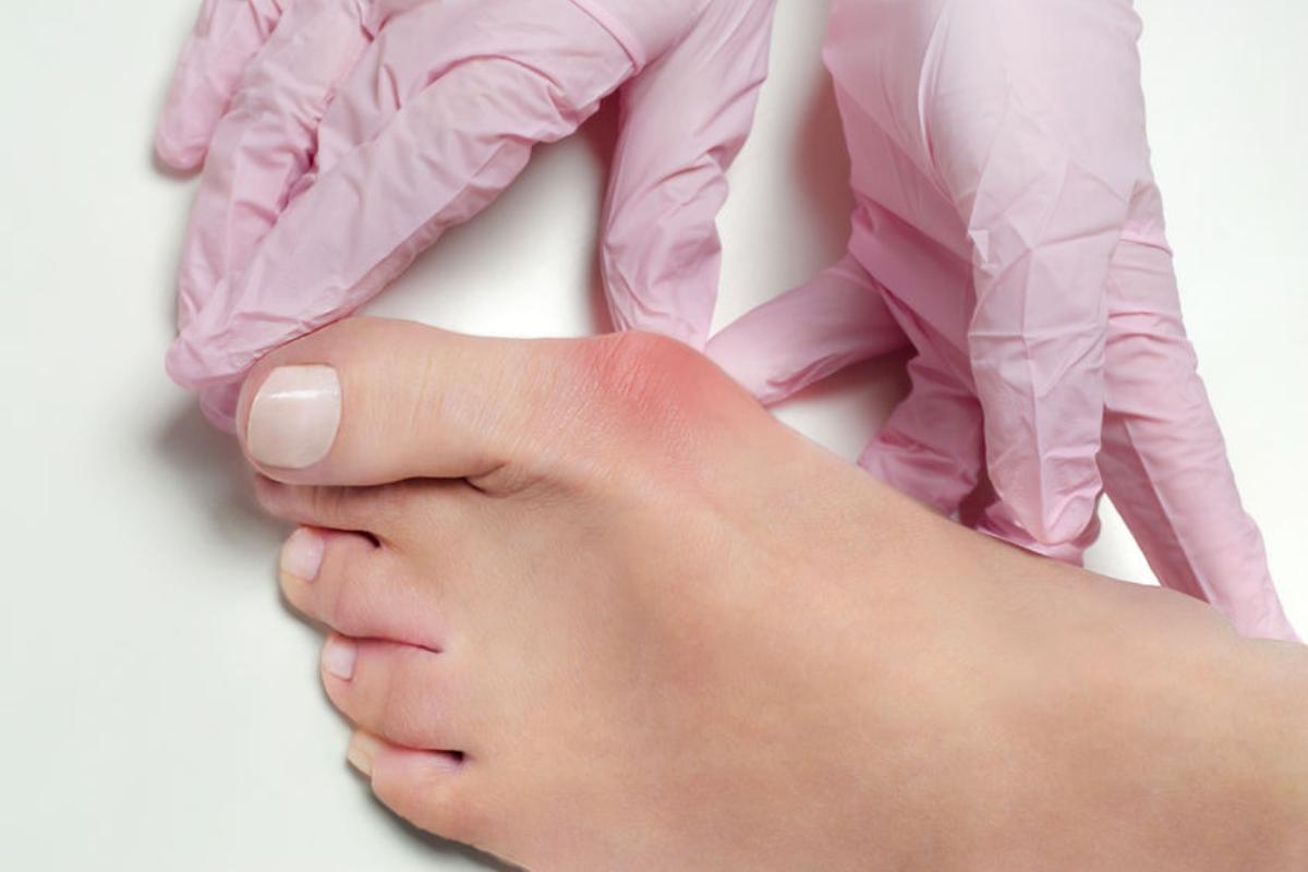 juanetes-que-son-tipos-sintomas-diagnostico-y-prevencion