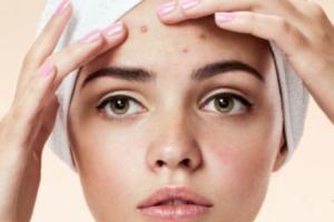 como-acabar-con-el-acne-en-adultos