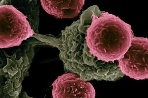 inteligencia-artificial-detecta-50-tipos-de-cancer-a-partir-de-anali