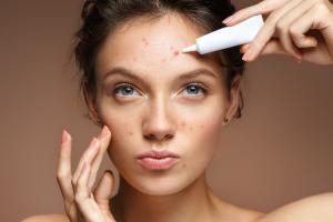 tres-tecnicas-para-ir-despidiendote-del-acne