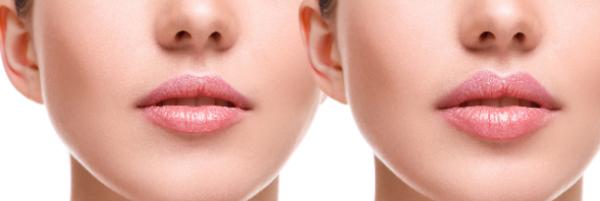 belleza-sin-bisturi-los-tratamiento-esteticos-mas-demandados