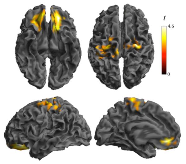 detectan-alteraciones-en-el-cerebro-de-los-ninos-y-ninas-obesos